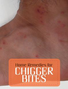 Home Remedy Chiggers Bites