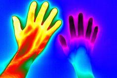 2016award09レイノー現象[寒冷や精神的な緊張から、四肢の先端の血管攣縮により、時間を追って手指の色調が変化する現象]|RAYNAUD'S PHENOMENON PHOTOGRAPH BY THERMAL VISION RESEARCH