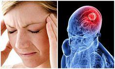 """El accidente cerebro-vascular (ACV), es una enfermedad también conocida con el nombre de """"ictus"""" o """"derrame cerebral"""" y se cobra…"""
