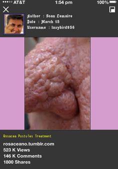 Rosacea Pustules Treatment 045806 - Rosacea Free Forever.