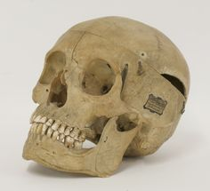 A medical human skull, with a label for Millikin & Lawley £200-300 16th June 2015
