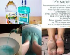 Easy peel of dry skin from feet: 1 cup of hot or warm water + cup of Listerine + cup of white vinegar. Soak your feet for 15 minutes and the dry skin starts to peel off. Beauty Care, Beauty Skin, Diy Beauty Hacks, Listerine Foot Soak, Foot Soak Vinegar, Whatsapp Tricks, Pedicure At Home, Tips Belleza, Beauty Recipe