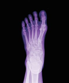 How an X-ray can help diagnose your foot pain #podiatry #fractures #breaks #bones #injuries
