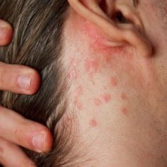 Skin Rashes Causes And Symptoms | Health Care A to Z