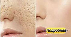 Яблочный уксус очень эффективен для подтяжки кожи и уменьшения пор, он балансирует уровень рН кожи и борется со всеми инфекциями кожи. 2.Используйте гель алоэ вера в качестве ночного крема. Нанесите гель алоэ вера на очищенное лицо и оставьте его на ночь. На следующее утро просто вымойте лицо. Это позволит не только сохранить вашу кожу хорошо …