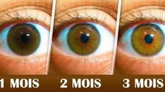 Solid Eye Care For Vision Tips You Can Use Today *** More details can be found by clicking on the image. Best Eczema Treatment, Self Treatment, Types Of Sleep Apnea, Causes Of Sleep Apnea, Daily Contact Lenses, Corneal Ulcer, Vitreous Humour, Intracranial Pressure, Home Remedies
