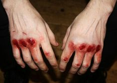 Knuckles bloodied and bruised from the battles i had to to lose to get where im at. -ravennamiller