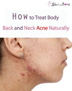 Natural diy face masks for acne diy do it yourself homemade google solutioingenieria Gallery