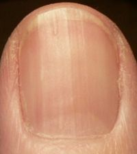 spots and ridges on fingernails is a sign of B12 deficiency | Home ...