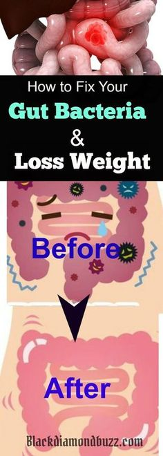 Healthy Gut Bacteria Diet - Best Ways to Increase Your Good Gut flora / Bacteria and Weight Loss Naturally . This will also fix your leaky gut. Try It!