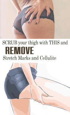 To fight cellulite, cosmetics sold in pharmacies have an effective chemical composition. Thus, their side effects affect the quality of the skin. To remove cellulite and stretch marks from your skin, the use of a natural oil is a must