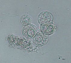 Transitional cell in urine unstained
