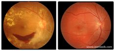 Check out the difference between a normal eye and an eye with diabetic retinopathy. Diabetic retinopathy is the leading cause of blindness among people 20–64 years of age in the U.S. Diabetes can lead to microaneurysms, hemorrhages, and exudates (yellow plaques) which are demonstrated on the left side of the photo. These photos are a good reminder of the importance of yearly exams as many systemic diseases are discovered during routine check-ups.
