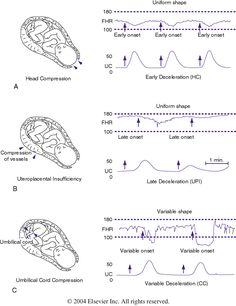 Figure 85-4 Patterns of periodic fetal heart rate (FHR) deceleration....
