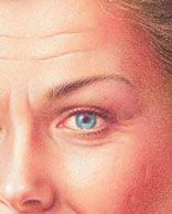 Years of squinting and other facial muscle movements can take their toll on the eye area, leaving crow's feet and other noticeable lines.......