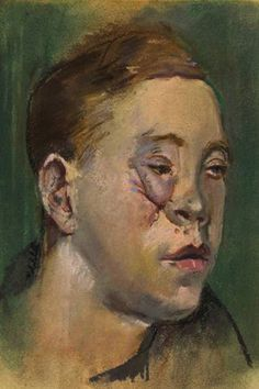 Henry Tonks watercolour documenting facial injuries of the First World War. Distortion Art, War Image, Funny Drawings, English Artists, National Portrait Gallery, Painting & Drawing, Illustrators, Art Projects, Personal Investigation