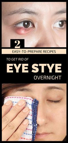 Natural Holistic Remedies 2 Easy-To-Prepare Recipes To Get Rid Of Eye Stye Overnight - The stye - is an acute and purulent inflammation of eyelashes follicle or a sebaceous gland near the Get Rid Of Stye, Get Rid Of Warts, Remove Warts, Eye Stye Remedies, Skin Tags Home Remedies, Cold Remedies, Holistic Remedies, Natural Remedies, Health Remedies