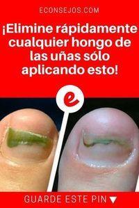 CLAVO DE OLOR para Hongos uñas pies y mas Foot Remedies, Health Remedies, Natural Remedies, Nail Fungus, Body Treatments, Natural Medicine, Science, Good To Know, Natural Health