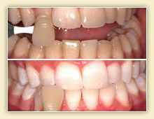 Have you ever wondered how teeth are whitened? Natural Teeth Whitening, Dentistry, Health, Food, Products, Health Care, Eten, Healthy, Meals