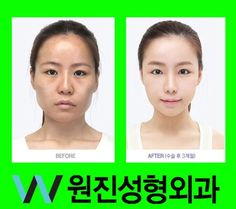 South Korea plastic surgery before and after photos