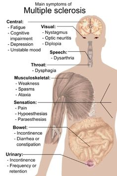 Symptoms of MS and what it affects