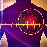 Atrial fibrillation is becoming a major issue in the United States, in large part due to an aging population.