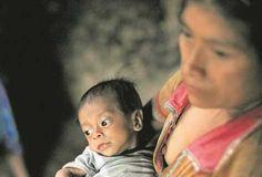 Pobreza y desnutrición persisten