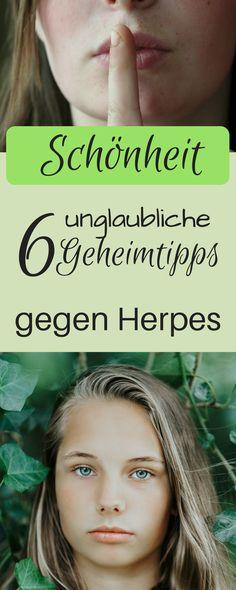 6 unglaubliche Geheimtipps gegen Herpes, die garantiert helfen. Herpes schnell weg, Herpes Hausmittel, Herpes Hilfe, Herpes Kokosöl, Herpes mund, Herpes Teebaumöl, Herpes Wasserstoffperoxid, Herpes Pflaster, natürlich schön, Lippenherpes bekämpfen, was hilft gegen Herpes