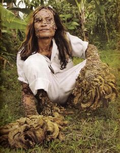 """Dede, aka """"Tree Man"""", is an Indonesian fisherman who has been slowly changing into a tree. After cutting his knee as a teenager, Dede began to grow tree-like warts that have baffled local doctors and medical experts for over 20 years."""