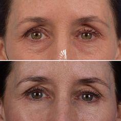 #blepharoplasty #eyelidsurgery #eyelift #eyelids #plasticsurgeon #beforeandafter #beautyproducts Korean Eyebrows, Short Eyebrows, Bleached Eyebrows, How To Do Eyebrows, Dark Eyebrows, Eyebrow Tutorial For Beginners, Anastasia Beverly Hills Eyebrow, Kendall Jenner Makeup, Eyelid Surgery