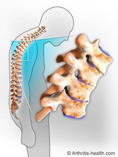 Ankylosing spondylitis (AS) is a type of arthritis that primarily affects the back (spine).  http://www.arthritis-health.com/types/ankylosing-spondylitis/ankylosing-spondylitis-overview