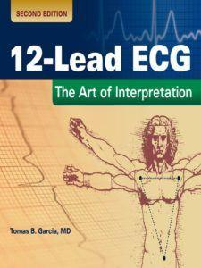 12 Lead Ecg The Art Of Interpretation 2nd Edition Free Pdf Download 12 Lead Ecg The Art Of Interpretation 2nd Ed Ecg Interpretation Interpretation Ebook