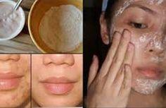 Magically enlever les taches, cicatrices d'acné et les rides avec ce masque juste après la deuxième utilisation !!!