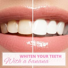 How to whiten your teeth with a banana from Women's Best! No need to buy harsh chemical teeth whitening kits!