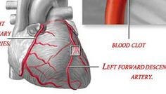Get rid of  hardening in the arteries and fat in the blood!