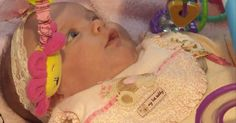 """Baby """"born twice"""" after life-saving surgery outside womb #Science #iNewsPhoto"""