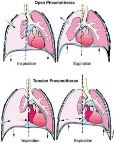 diagram of open pneumothorax & tension pneumothorax Paramedic Student, Firefighter Paramedic, Respiratory System Anatomy, Respiratory Therapy, College Nursing, Nursing Notes, Nursing Tips, Cardiac Nursing, Nursing Assessment