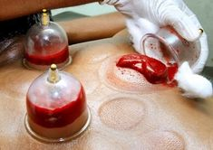 What is wet cupping therapy and its benefits for body health