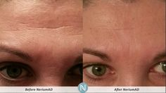 NeriumAD 90 Day challenge Look at the difference!