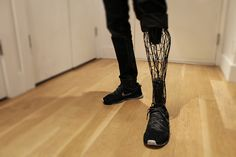3D printed exo-prosthetic leg becomes a customizable body part - designboom | architecture