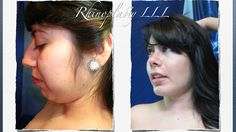 RHINOPLASTY AND MULTIPLE  AESTHETIC PLASTIC SURGERY OF THE FACE. lll@lllplasticsurgery.com  lllplasticsurgery1@hotmail.com  WWW.LLLPLASTICSURGERY.COM