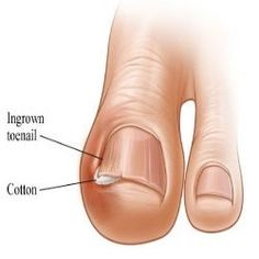 Effective Home Remedies For Ingrown Toenails - or come see Dr. Brook at Dallas Podiatry Works!