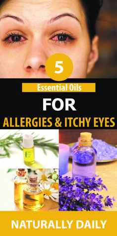17 Best itchy eyes images in 2017 | Dry itchy eyes, Natural