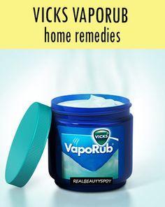 DIY Vicks vaporub home remedies - rough feet, sinus headache, stretch marks, toothache, nail fungus....