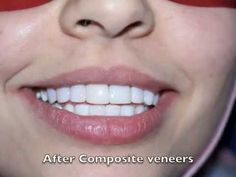 The best Hollywood smile veneers Lumineers Beirut Lebanon number one dentist and dental clinic Dr.HAbib Zarifeh head of CMC dental division affiliated with Johns Hopkins International where technology meets science in one of the first 10 most beautiful hospital in the world.CALL US now: +96170567444 (WhatsApp...) Http://www.hollywoodsmilecost.wordpress.com http://www.hollywoodsmilebeirutlebanon.com http://www.youtube.com/beiruthollywoodsmile http://www.linkedin.com/in/hollywoodsmile