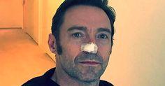 Hugh Jackman shares skin cancer removal selfie so you wear sunscreen #Lifestyle #iNewsPhoto