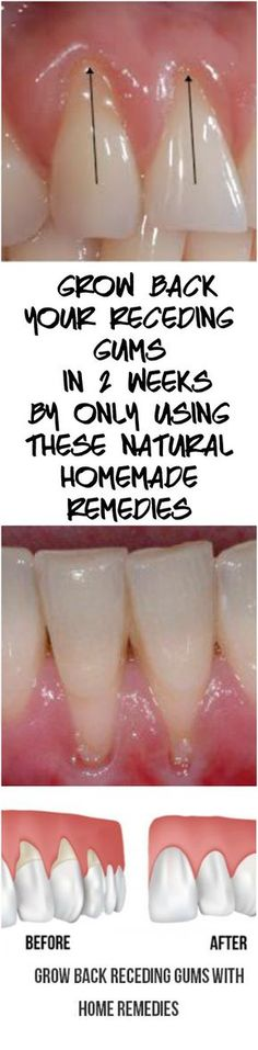 Grow Back Your Receding Gums In No Time With The Help Of These Natural Remedies – Natural Healing Education Teeth Health, Oral Health, Healthy Teeth, Dental Health, Health Care, Gum Health, Dental Care, Natural Health Remedies, Herbal Remedies