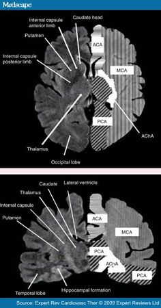 Ischemic stroke treatment is time dependent, but the window of opportunity for effective diagnosis and treatment may be changing. Is there an evidence-based alternative to traditional treatment? Health And Fitness Tips, Health Advice, Health Care, Health Diet, Healthy Tips, How To Stay Healthy, Healthy Food, Internal Capsule, Mri Brain
