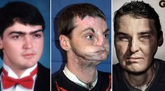 GQ profiles Richard Norris, who underwent a facial transplant in 2012.