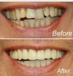 Reconstruction of teeths Teeth Whitening Remedies, Teeth Whitening System, Natural Teeth Whitening, Dentist Nyc, Celebrity Dentist, Coffee And Cigarettes, Smile Makeover, Stained Teeth